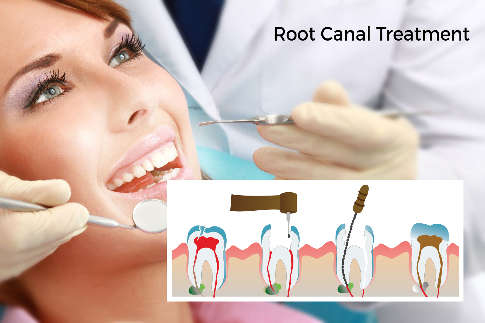Everything you need to informed about Root Canal Treatment