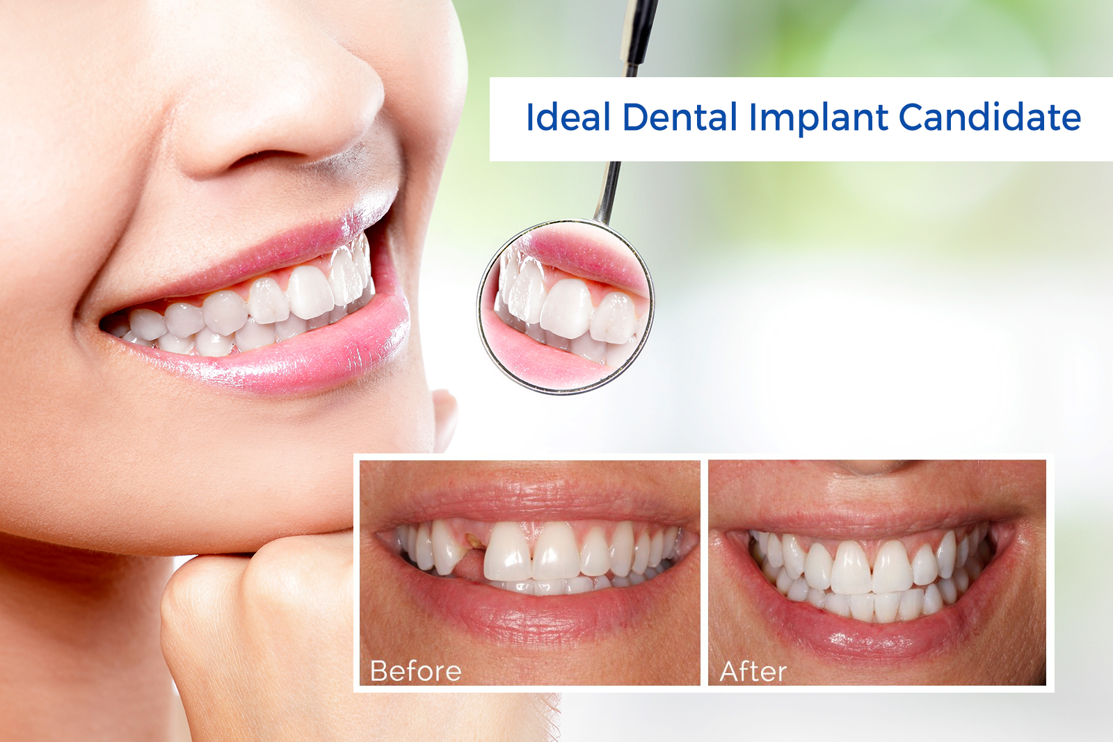 Does Your Dentist Suggest To Perform Dental Implants?
