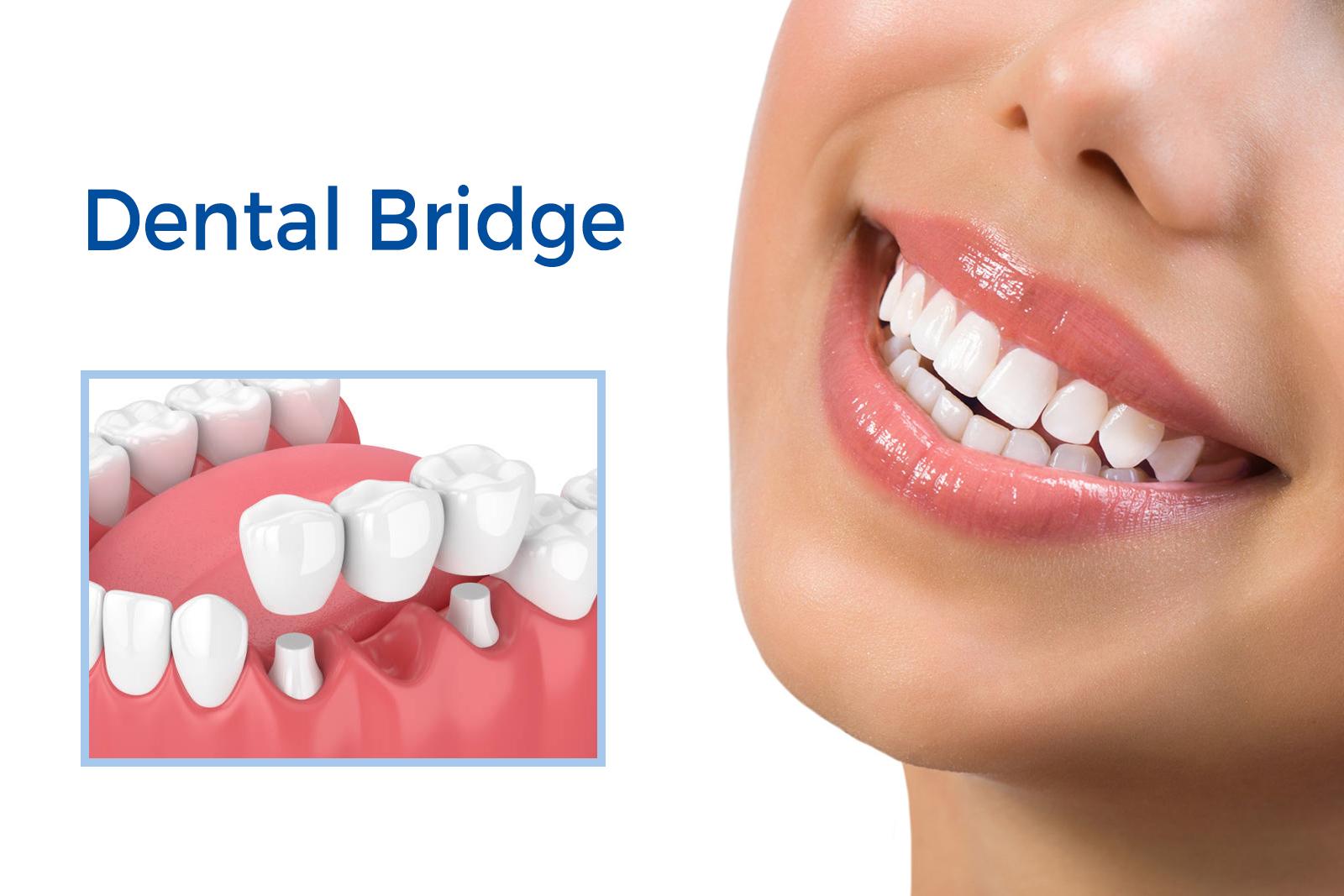 Reasons why dental implant bridges are better than dentures