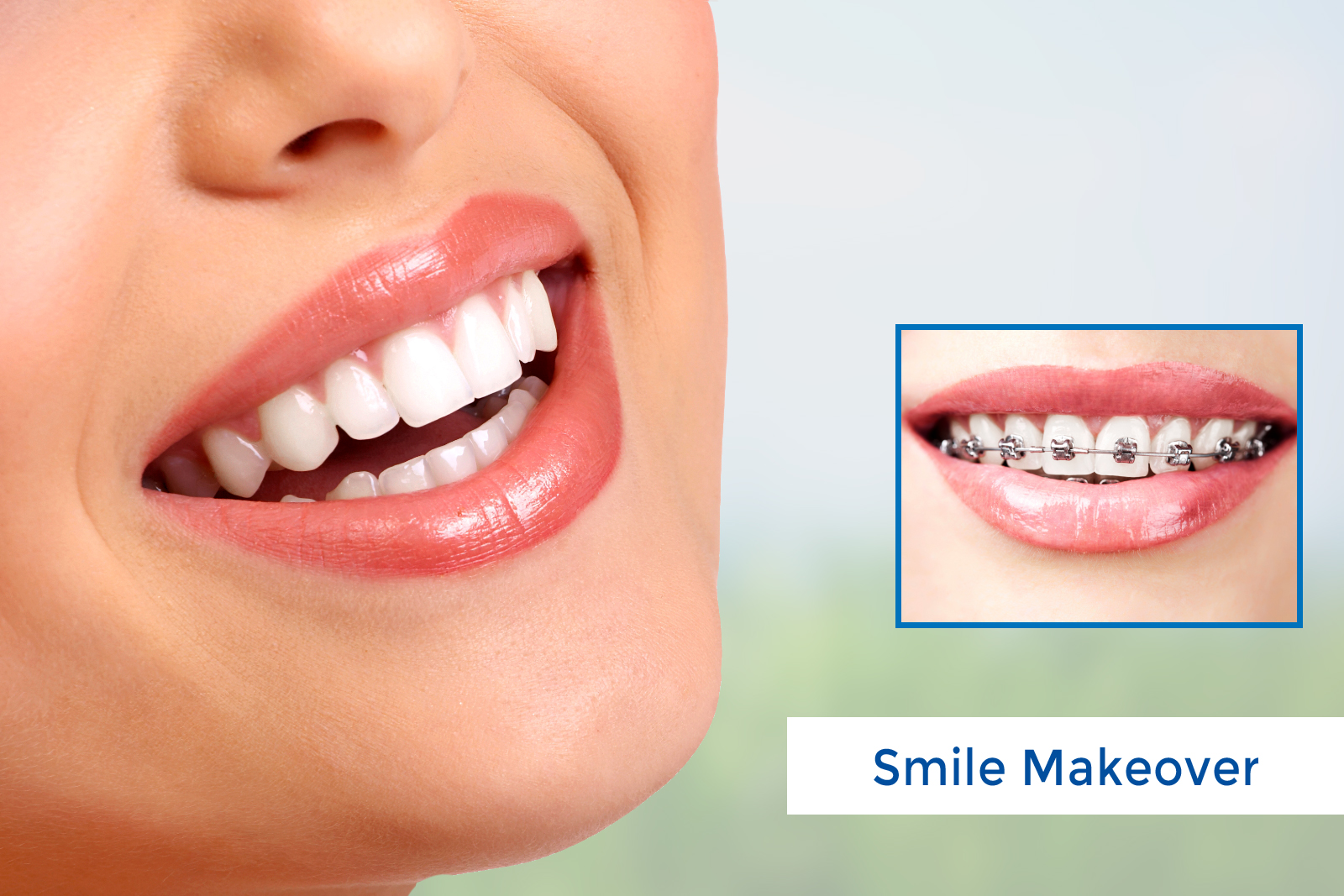 Cosmetic Dentistry allows you a complete New Way to Smile