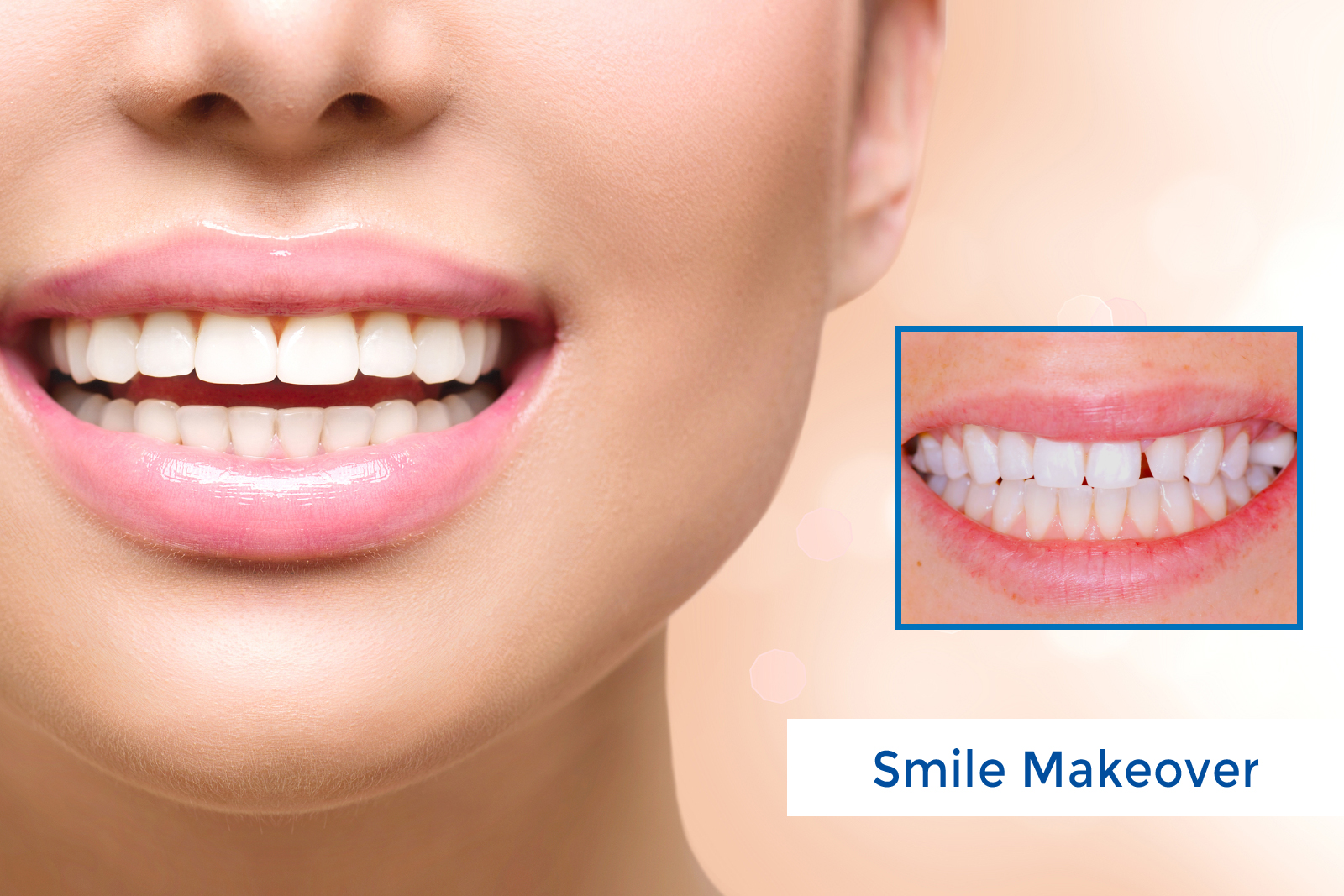 What Could You Procure from a Smile Makeover?