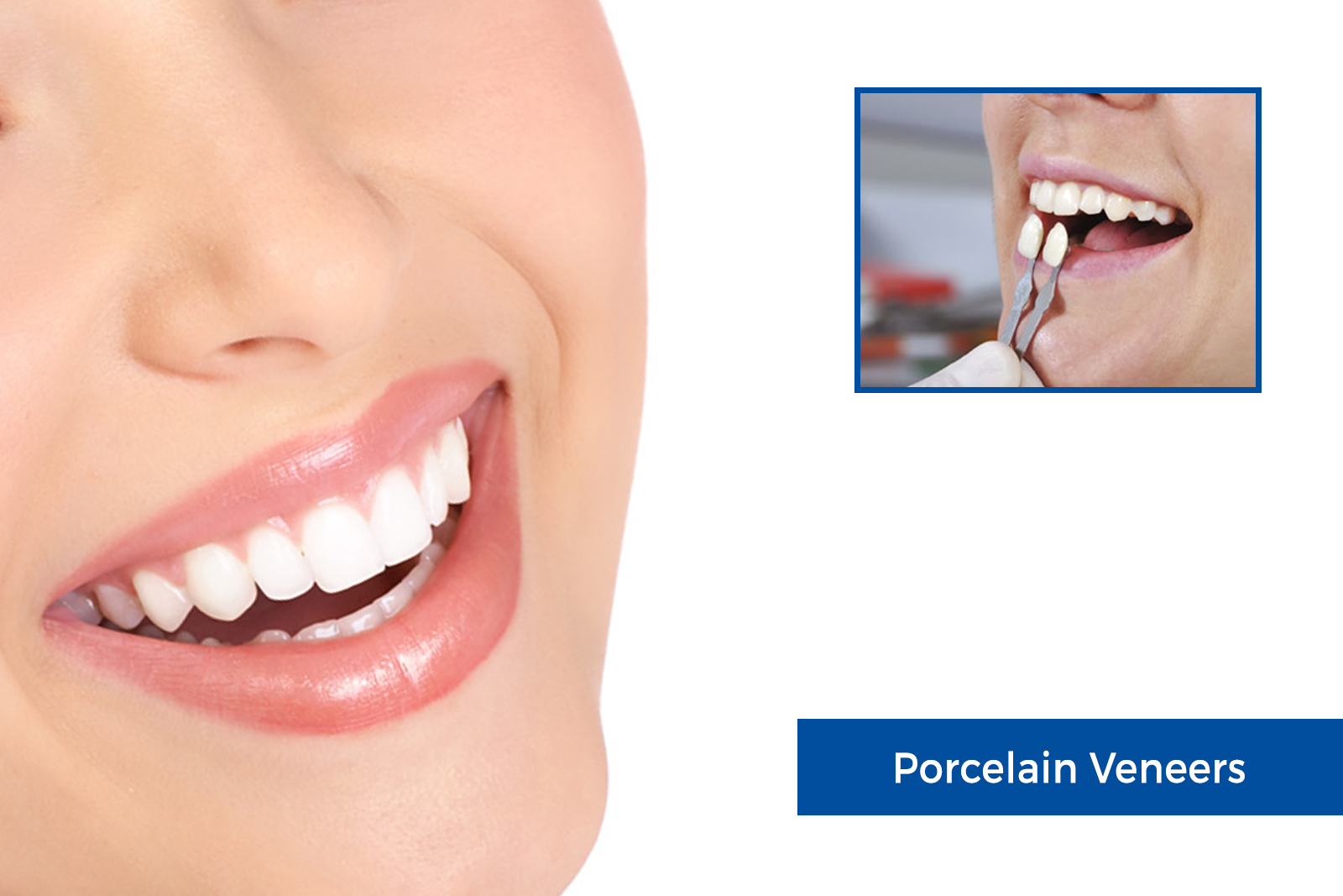 Using porcelain veneers to augment the smile