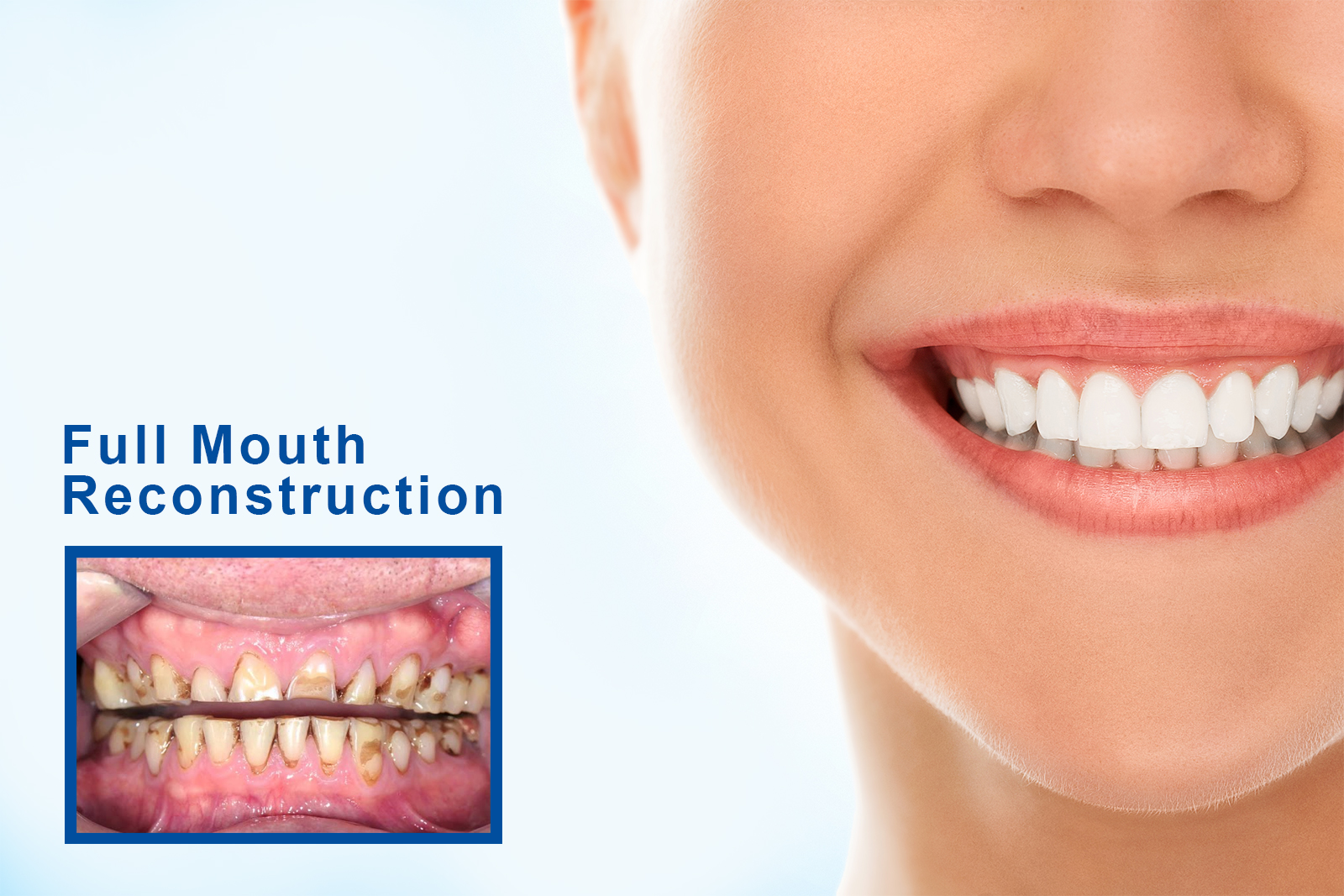 When you should talk to your dentist regarding full mouth restoration?