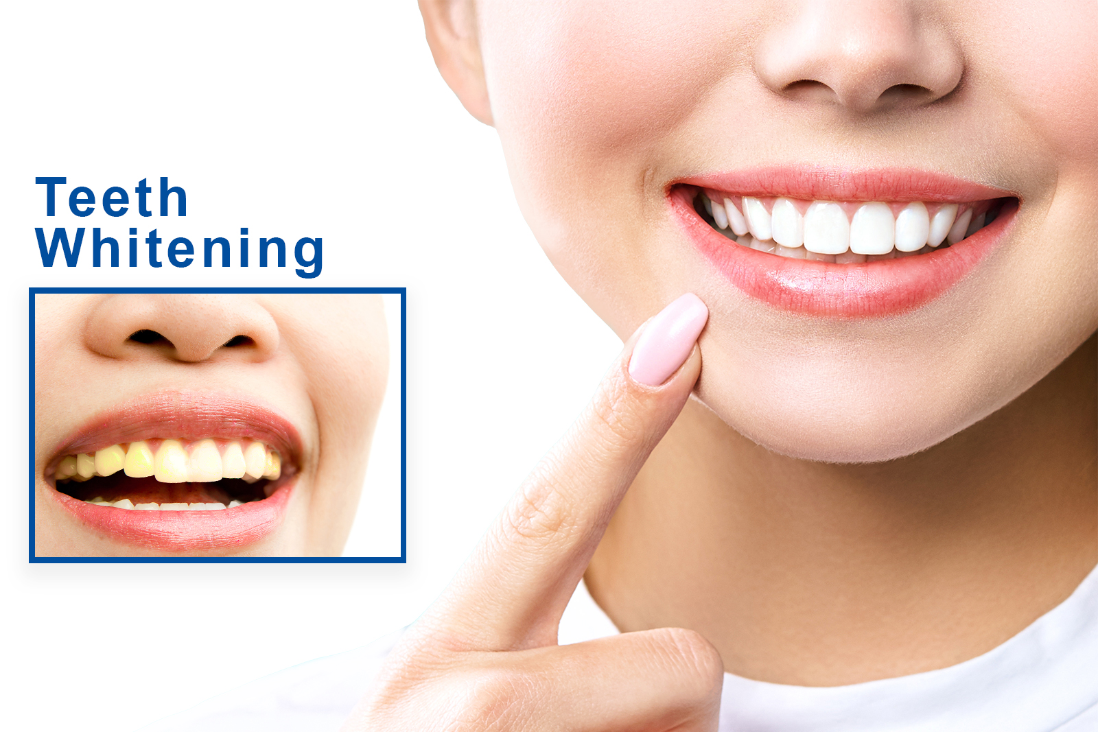 Things you should be informed regarding Teeth Whitening