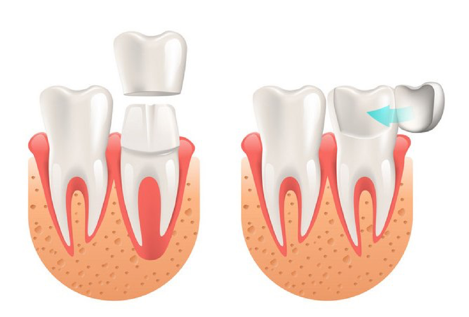 Treatment choices: Dental Crowns Vs Porcelain Veneers