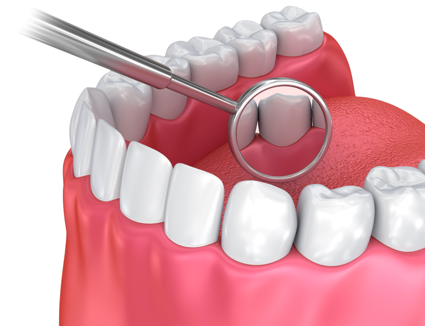 Significance of Dental Exams & Cleanings