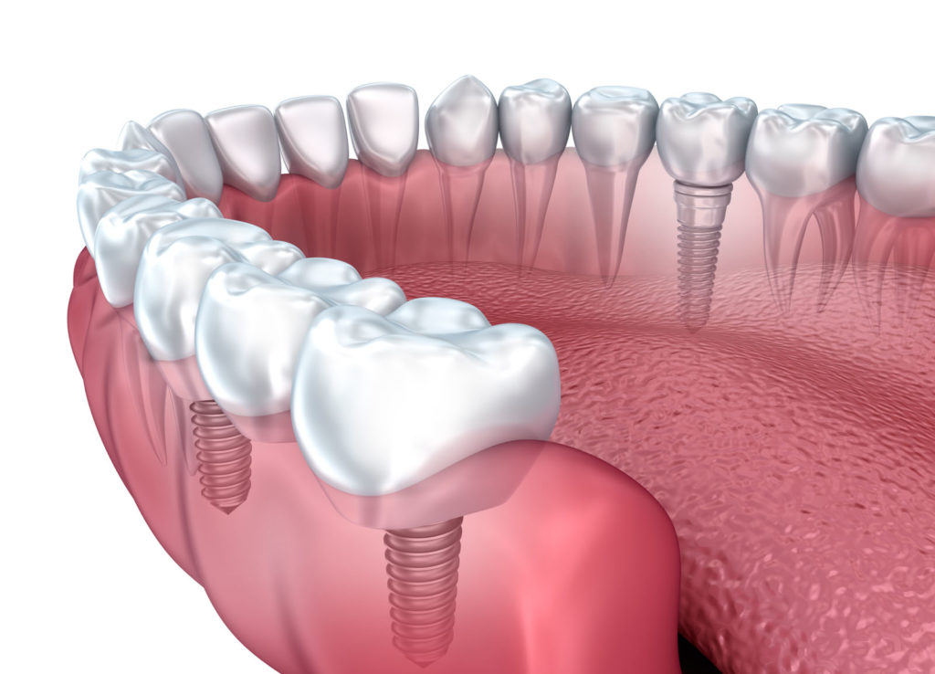 Dental Bridge vs. Implant: What's the Best Approach to Replace a Tooth?
